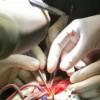 В БСМП операции на сердце делают без перерыва