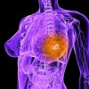 Клиника Ассута в Израиле: лечение рака груди с применением современных методик